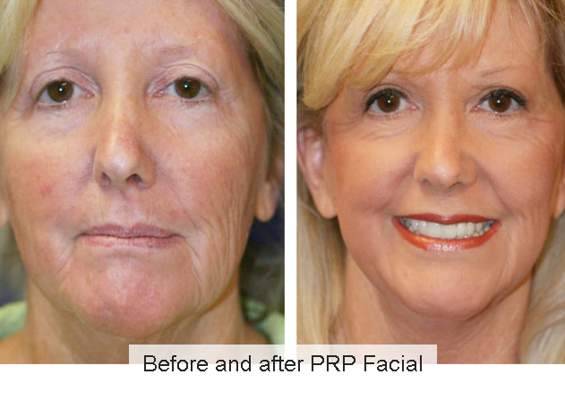 PRP with Microneedling - Spa Tru Face & Body Lounge