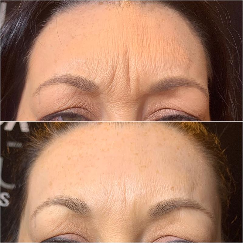 Botox forehead