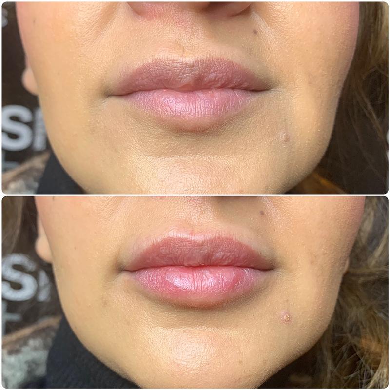 KISS Lip Filler